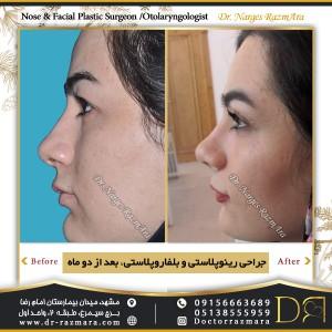 جراحی بینی و بلفاروپلاستی بعد (2) ماه