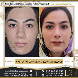 جراحی بینی و بلفاروپلاستی بعد دوماه