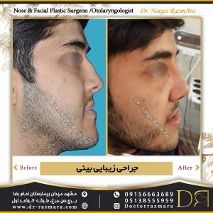 جراحی بینی در مردان در مشهد نمای نیم رخ 2