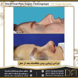 جراحی بینی پس از عمل بلافاصله