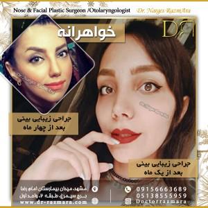 جراح بینی دو خواهر