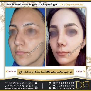 بعد از براشتن گچ بینی پس از عمل نیم رخ