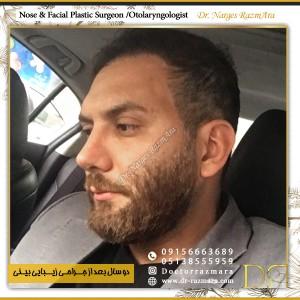 تصویر ارسالی عمل بینی مردانه