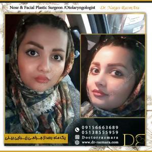 تصویر ارسالی عمل بینی زنانه