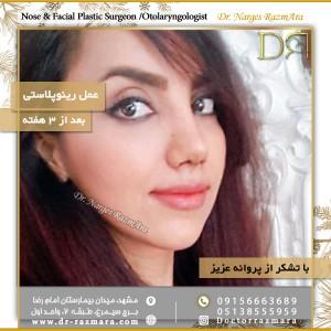 تصاویر ارسالی جراحی بینی پس از 3 هفته