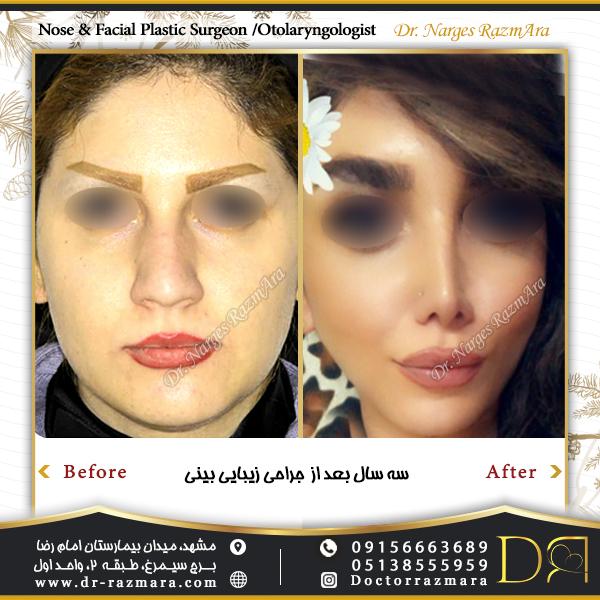3 سال بعد از جراحی بینی