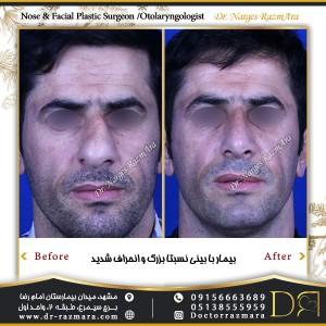 بیمار با بینی نسبتا بزرگ و انحراف شدید