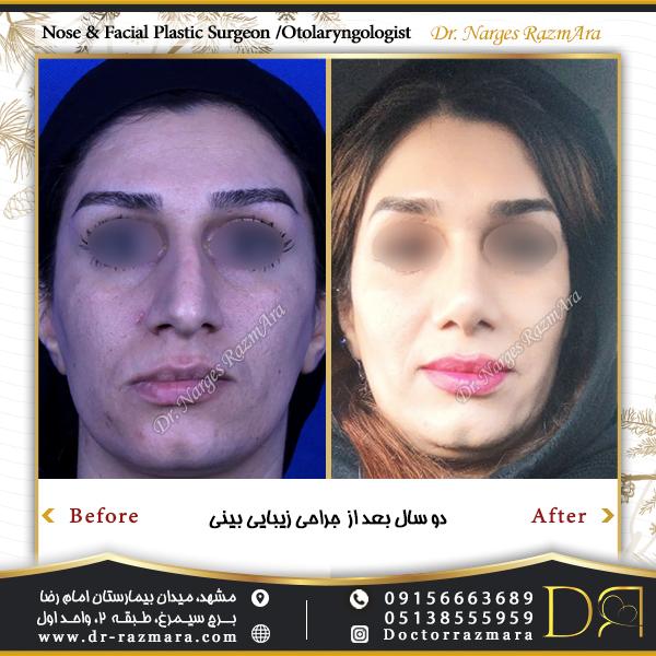 2 سال بعد از جراحی بینی