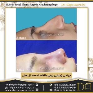 جراحی زیبایی بینی بلافاصله بعد از عمل نمای نیم رخ