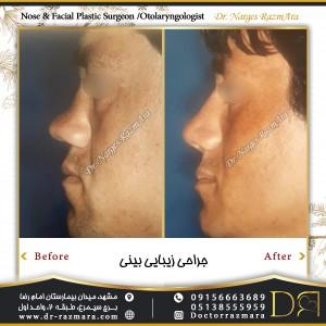 جراحی بینی مردانه نمای نیم رخ