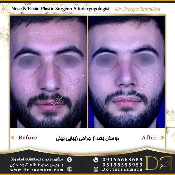 جراحی بینی در مردان نمای تمام رخ