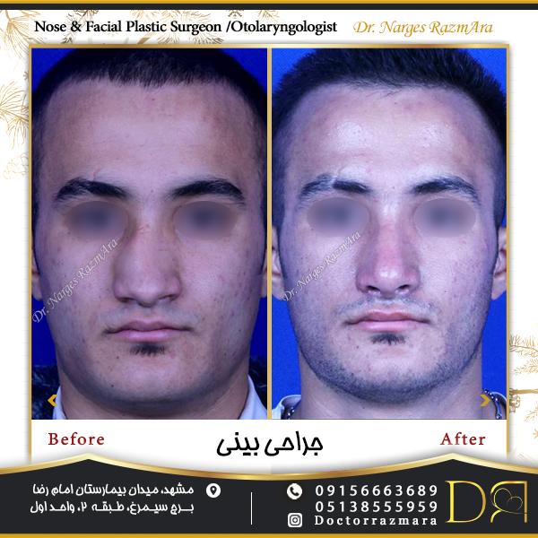 جراحی بینی در مردان تمام رخ