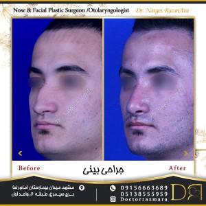 جراحی بینی در مردان نیم رخ
