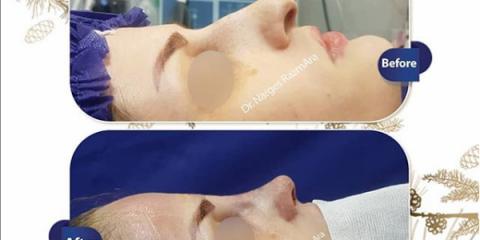 جراحی بینی نیمه فانتزی