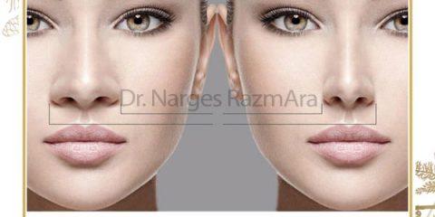 بهترین جراح بینی مشهد