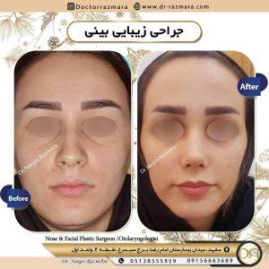 جراح بینی مشهد