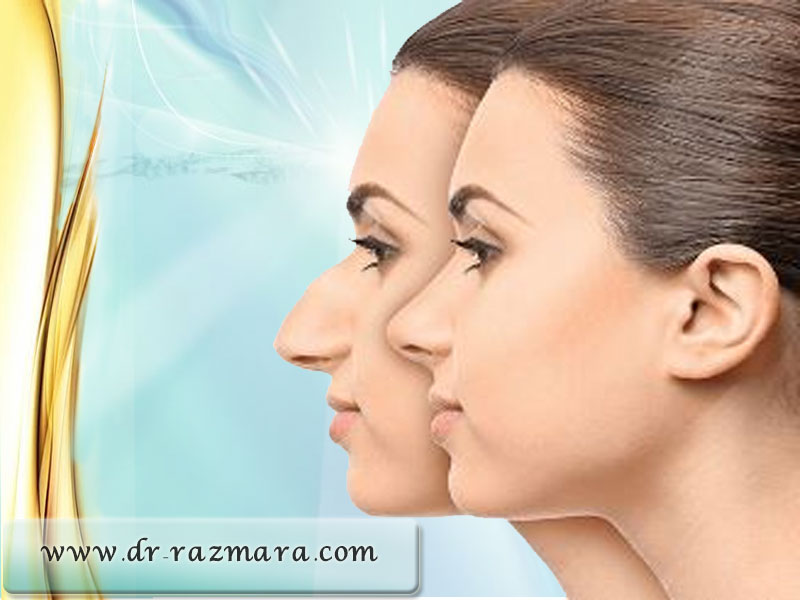 جراح بینی استخوانی