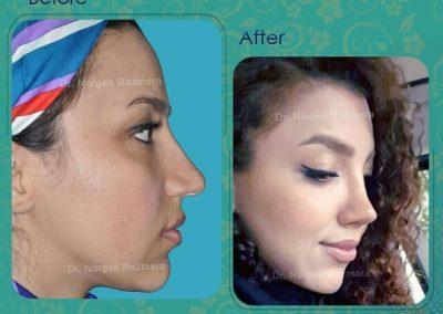 عکس قبل و بعد پس از یک سال از عمل بینی