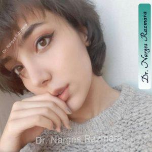 جراحی بینی دکتر نرگس رزم آرا