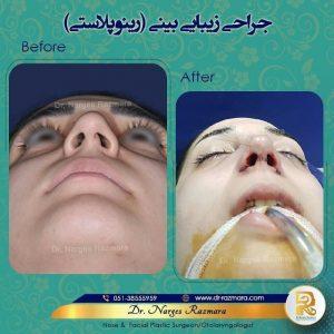 جراحی زیبایی بینی دکتر نرگس رزم آرا
