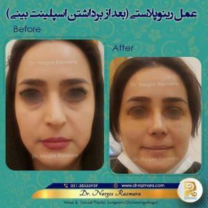 عمل رینوپلاسی بعد از برداشتن اسپلینت بینی