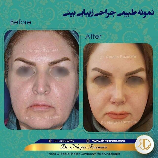 نمونه طبیعی جراحی بینی تمام رخ
