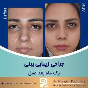 جراحی زیبایی بینی یک ماه بعد از عمل