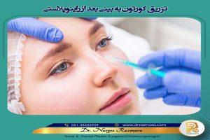 تزریق کورتون به بینی بعد از عمل