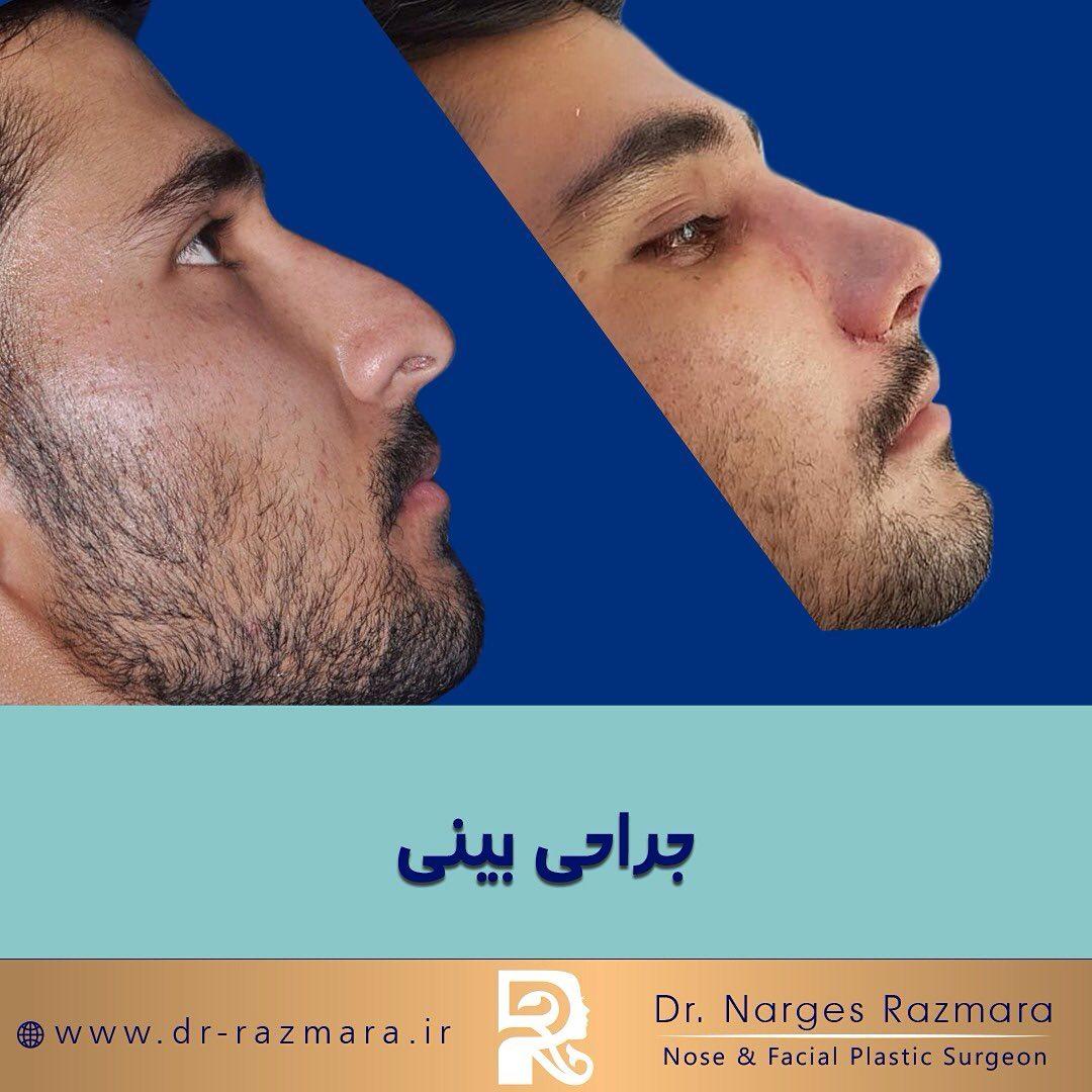 جراحی بینی در مردانه