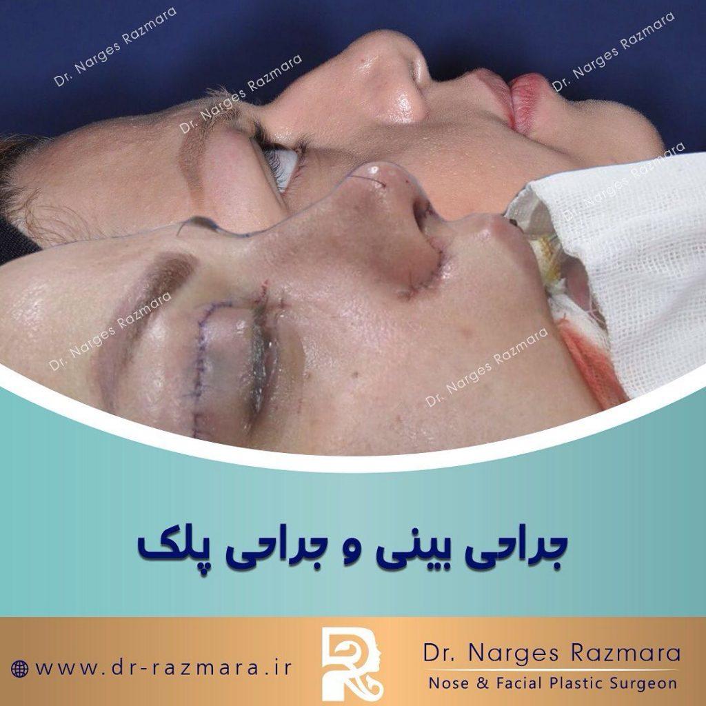 عمل بینی و جراحی پلک